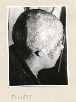 Reproserie Unfälle, Bild 3; Foto, 1957